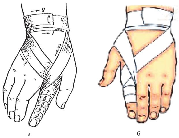 артист познакомился наложить повязку на палец руки картинки рейтингом