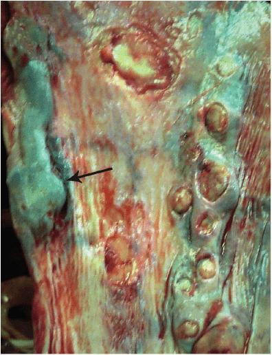 Варикозное расширение вен пищевода при циррозе печени. Под слизистой оболочкой пищевода видны резко расширенные, с варикозными узлами вены, заполненные кровью (показаны стрелкой)