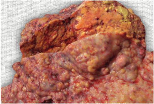 Печень при циррозе. Печень деформирована, с бугристой поверхностью за счет узлов регенерации в виде ложных долек
